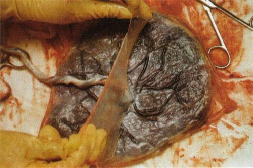 terhestanacsadas-es-szulesfelkeszites-12